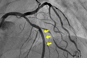 検査 冠動脈 造影